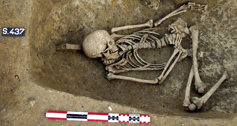 Quand l'archéologie éclaire le handicap.