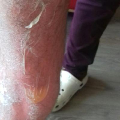 Arnaud, jambe brûlée et cloque
