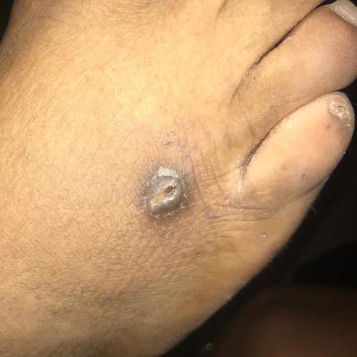 Tédrick, brûlure de cigarette au pied droit